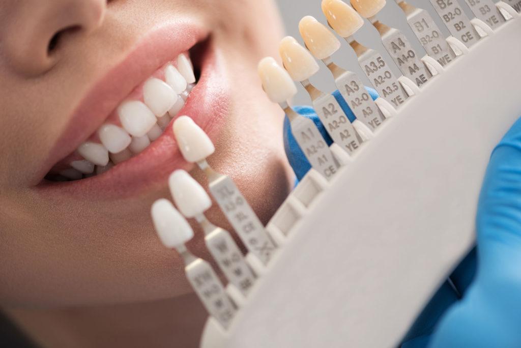 cabinet dentaire lausanne courrone