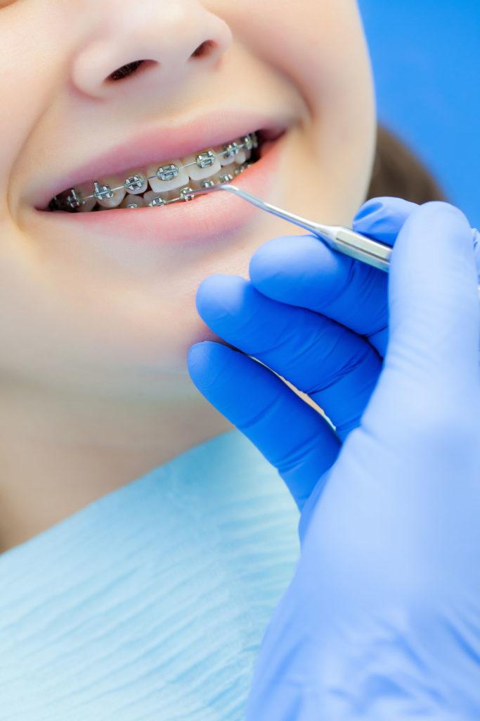 Une enfant sourit lors de son contrôle orthodontique.