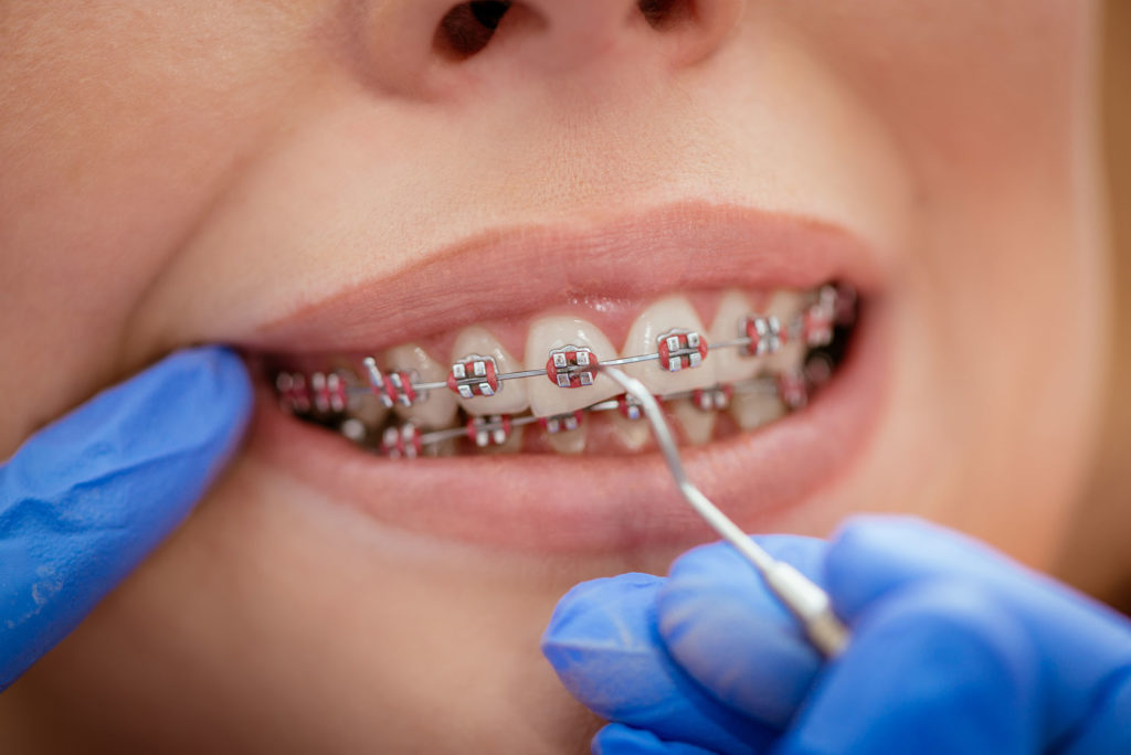 Traitement orthodontique avec un orthodontite dans notre cabinet à Lausanne.