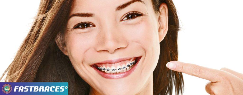 fastbraces traitement orthodontique
