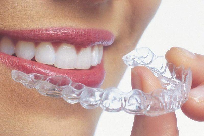 Une jeune femme montre ses gouttières amovibles Invisalign ® en souriant.