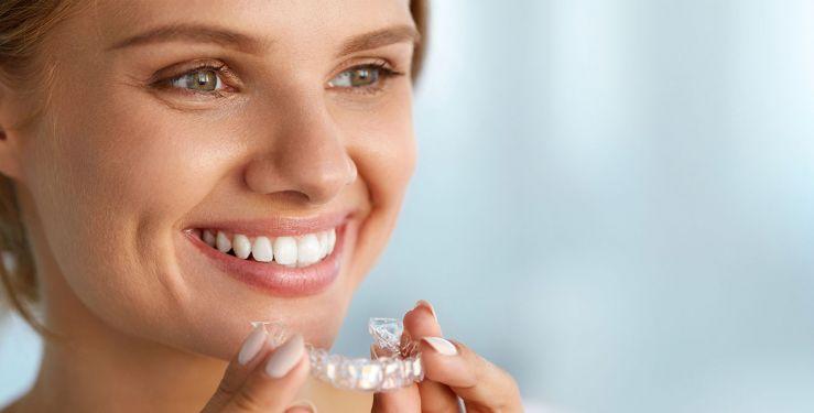 Jeune femme souriante montre un appareil orthodontique. Des gouttières orthodontiques transparentes.
